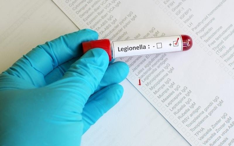 Legionella: incontro di formazione sulle nuove linee guida di sorveglianza e controllo